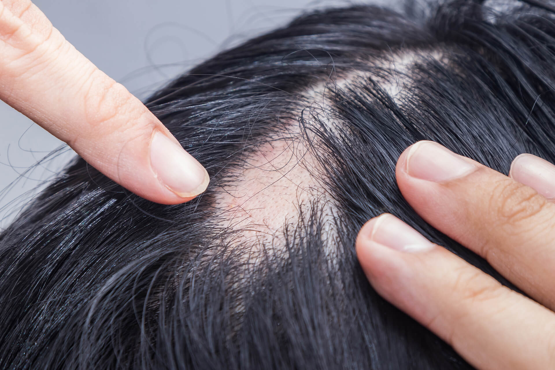 Is there hope for treatment of alopecia areata ?