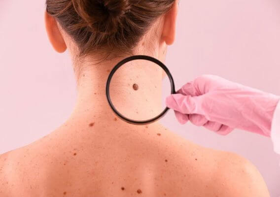 Skin Moles to worry About